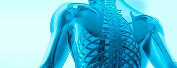 Imagen espalda rayos x, esqueleto. Traccion Axial de columna vertebral