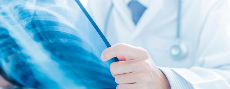 Imagen doctor mirando radiografía. Radiología digital Ecografía invaar
